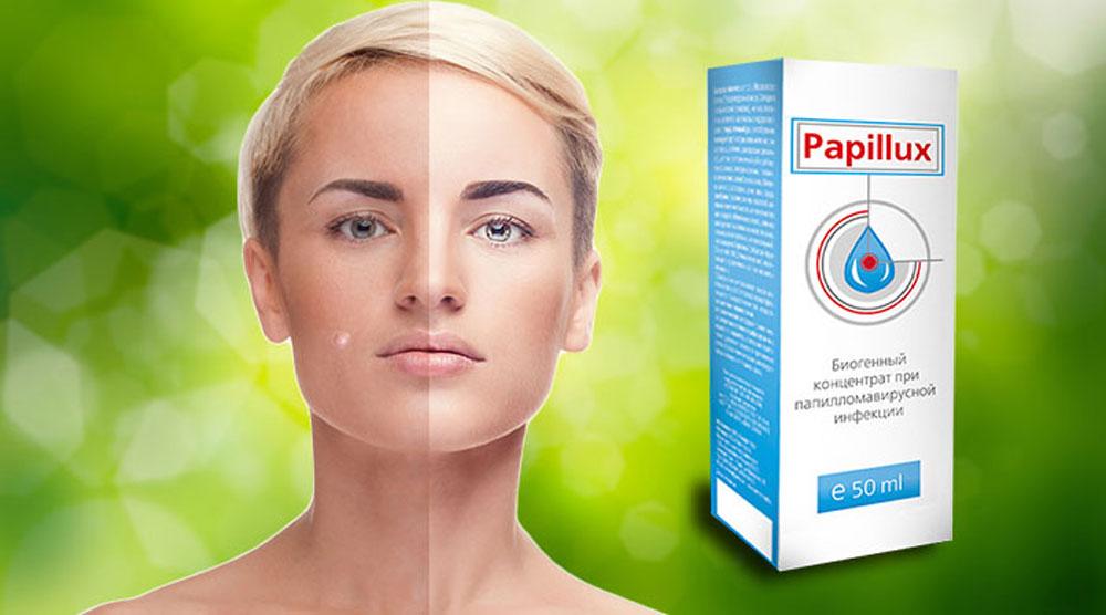 Papillux - средство от папиллом: отзывы реальных покупателей и специалистов